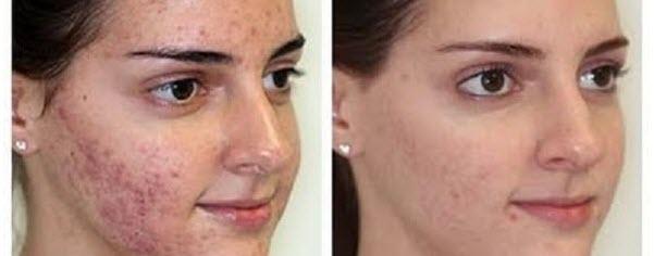 Will mederma help acne scar  Jill scott insomnia