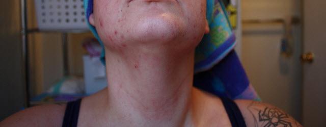 neck acne #11